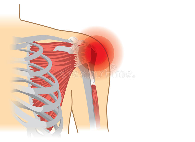 Human shoulder muscles and joints have a red signal. stock illustration