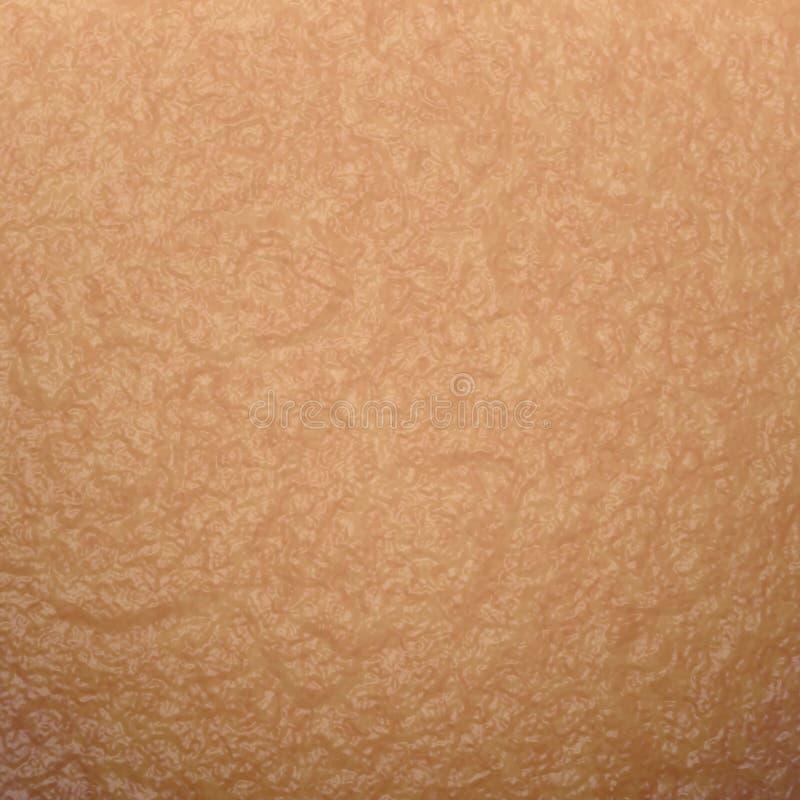 Download Human skin stock illustration. Image of cancer, flat - 26873643