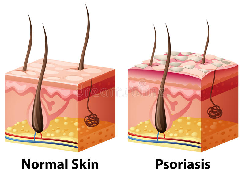 Human skin diagram with normal and psoriasis royalty free illustration