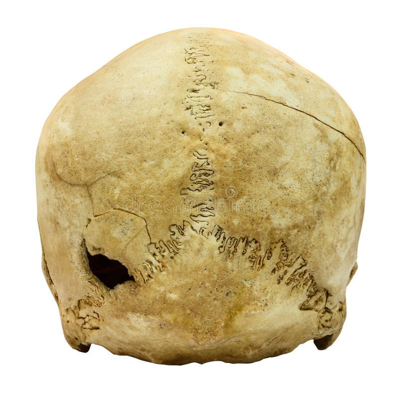 Human Skull Fracture (backside) (Mongoloid,Asian) on isolated b. Ackground royalty free stock images