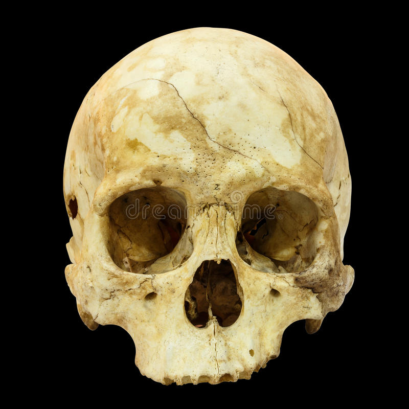 Human Skull Fracture (Mongoloid,Asian). On isolated background stock photo