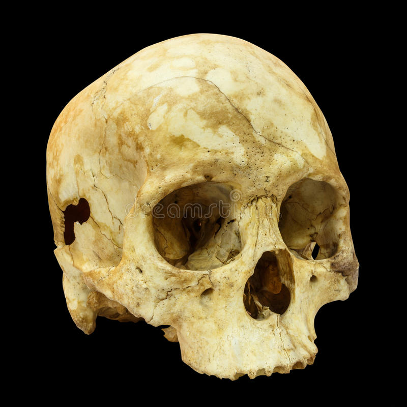 Human Skull Fracture(side) (Mongoloid,Asian) on isolated backgro. Und royalty free stock photography