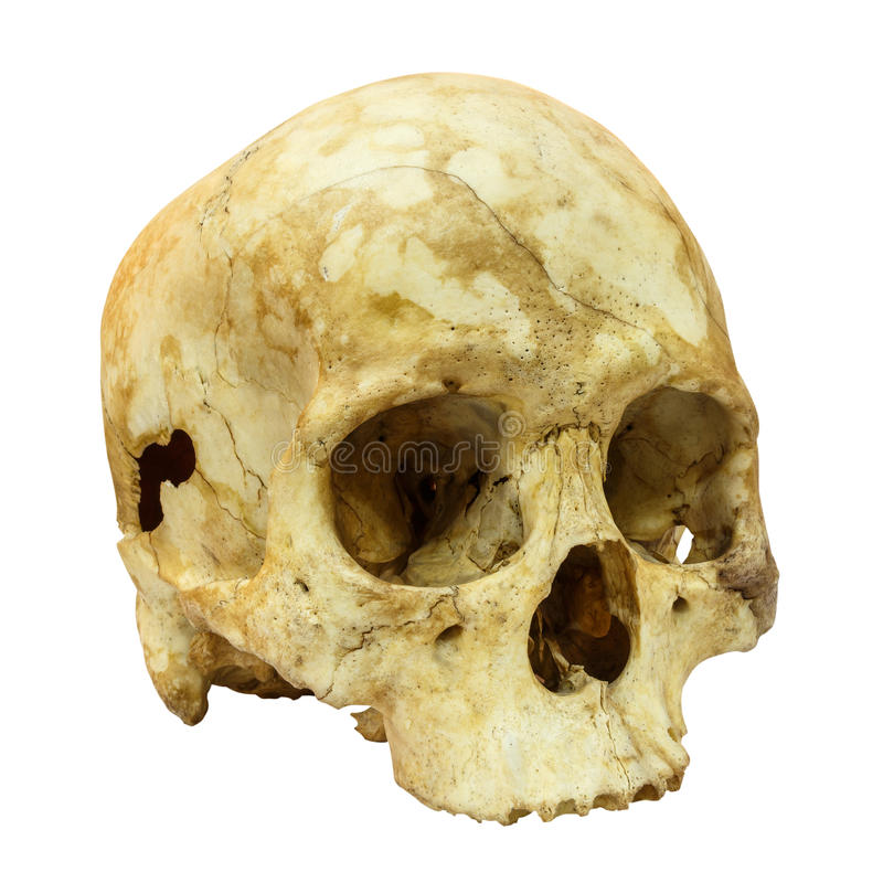 Human Skull Fracture(side) (Mongoloid,Asian). On isolated background royalty free stock photography