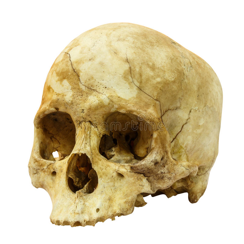Human Skull Fracture(side) (Mongoloid,Asian) on isolated background stock photography