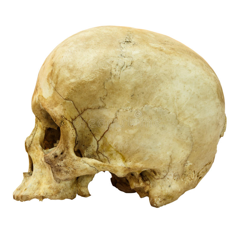 Human Skull Fracture (side) (Mongoloid,Asian). On isolated background royalty free stock photo