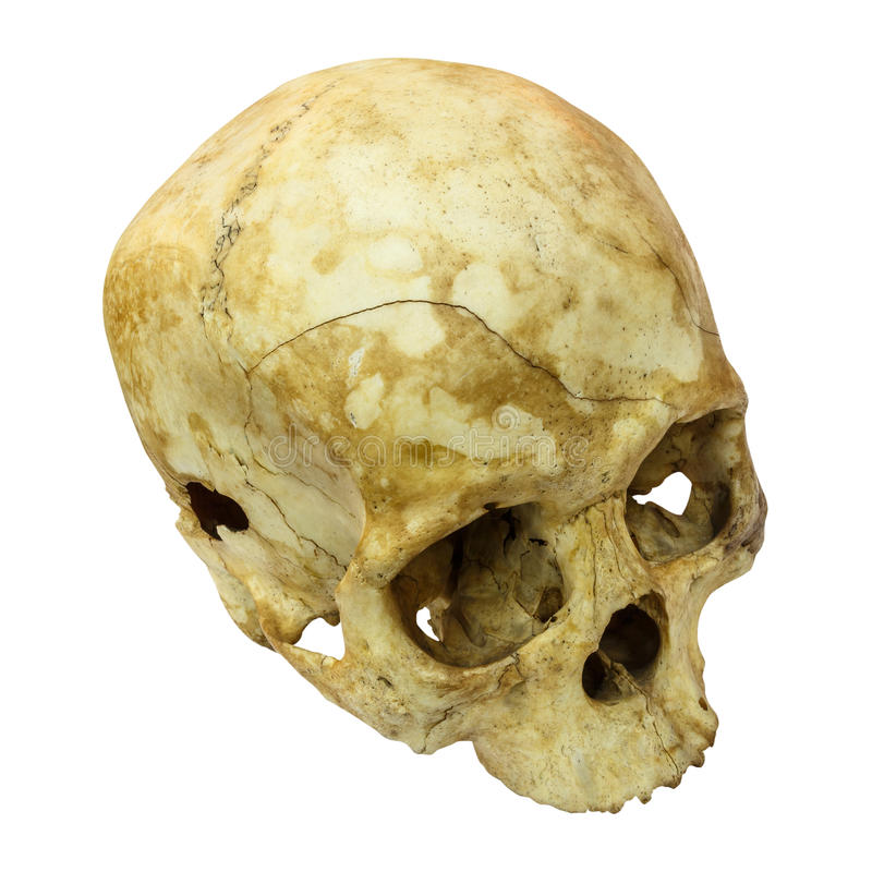 Human Skull Fracture(top side,apex)(Mongoloid,Asian) on isolated. Human Skull Fracture(top side,apex) (Mongoloid,Asian) on isolated background stock images