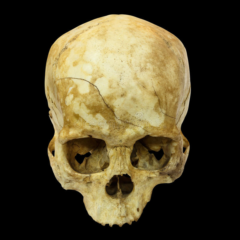 Human Skull Fracture(top side,apex)(Mongoloid,Asian) on isolated. Background stock image