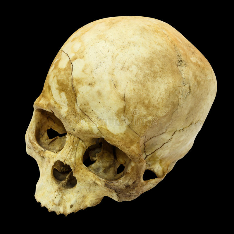 Human Skull Fracture(top side,apex)(Mongoloid,Asian). On isolated background royalty free stock photography