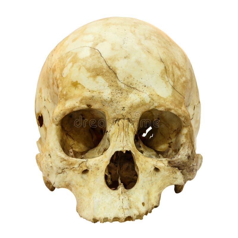 Human Skull on isolated background. Human Skull Fracture (Mongoloid,Asian) on isolated background royalty free stock photos