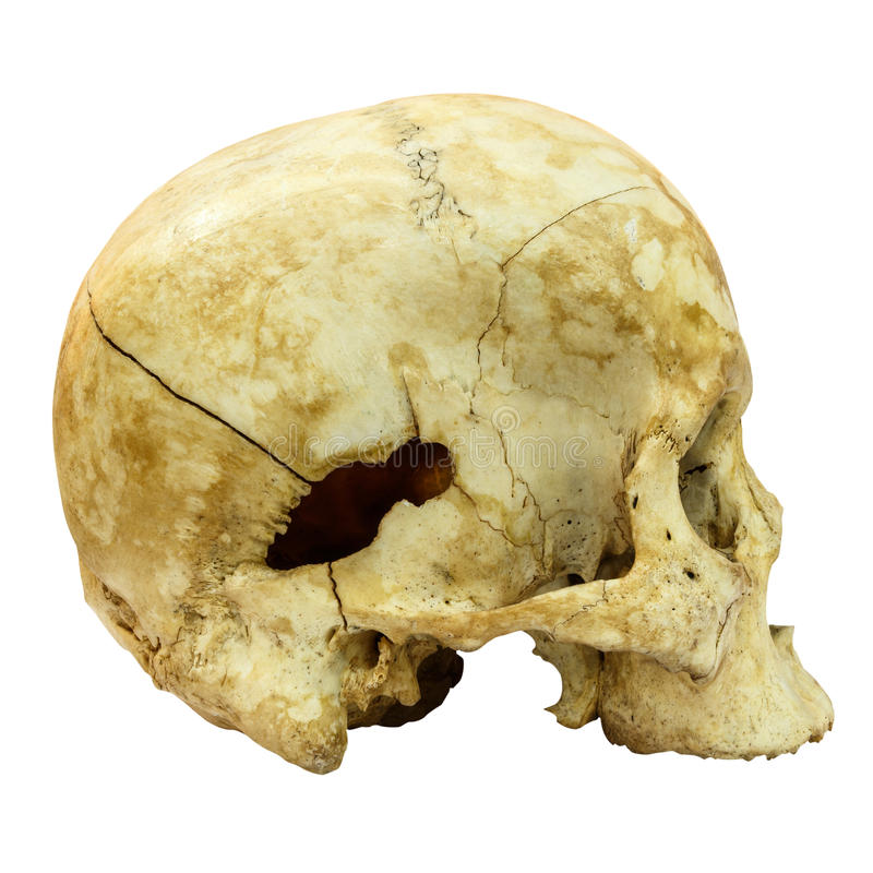 Human Skull isolated background. Human Skull Fracture(side) (Mongoloid,Asian) on isolated background stock image