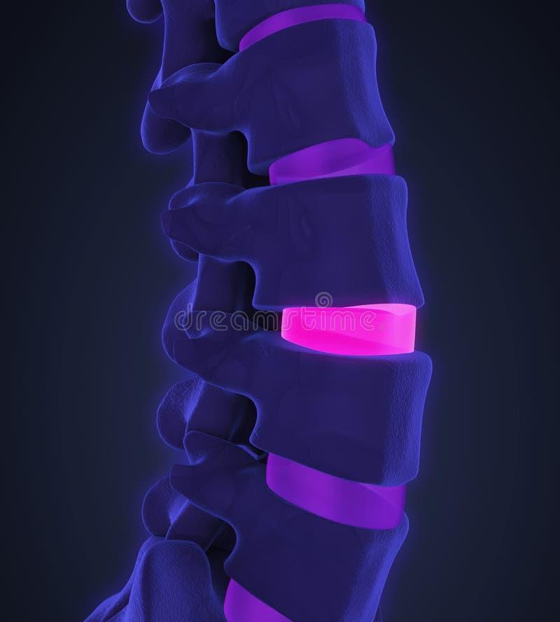 Human Spine Disc Degenerative stock illustration