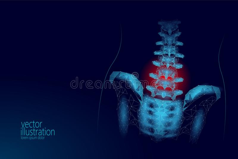 Human spine hip lumbar radiculitis pain low poly. Geometric polygonal particle triangle point line future medicine. Technology blue red painful area vector stock illustration