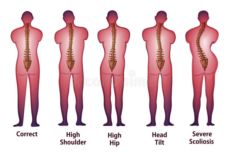 Human spine posture Back view.  royalty free illustration