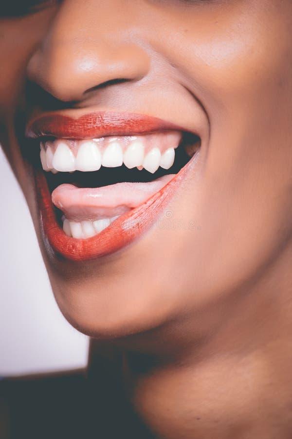 Human Teeth royalty free stock photography