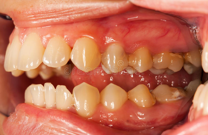 Human teeth. An open mouth photographed with a special technique, with dental mirrors for photography - vestibular view, visible pathological elements royalty free stock photos