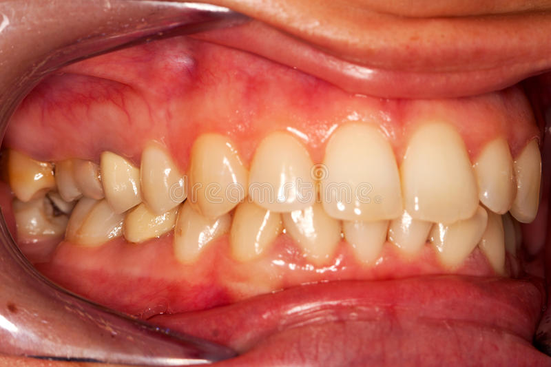 Human teeth. A closed mouth photographed with the aid of a retractor - - vestibular view, visible pathological elements on the distal teeth, where the focus is stock images