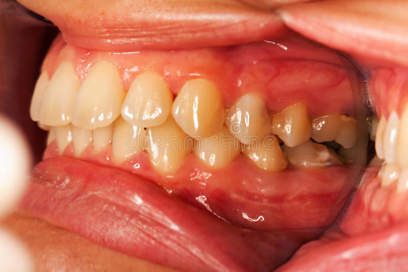 Human teeth. A closed mouth photographed with a special technique, with dental mirrors for photography - vestibular view, visible pathological elements stock photos