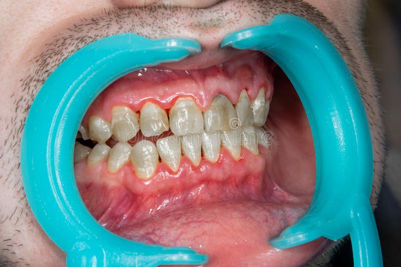 Human teeth closeup with dental plaque and inflammation of gingivitis. Concept of brushing teeth and poor hygiene royalty free stock photos