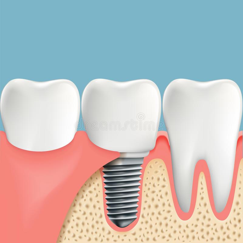 Human Teeth And Dental Implant. Anatomy Of The Oral Cavity. Stoc ...