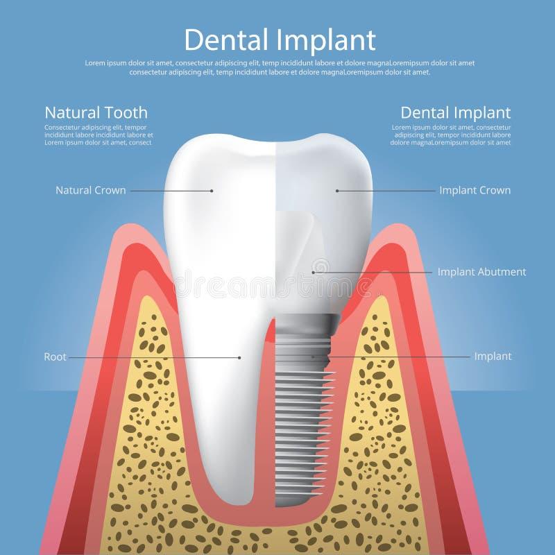 Human teeth and Dental implant stock illustration