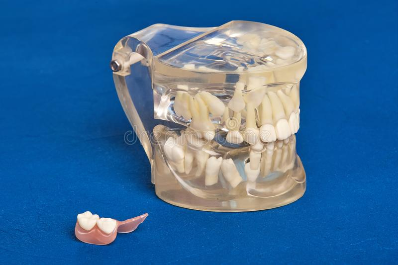 Human teeth orthodontic dental model with implants, dental braces royalty free stock photos