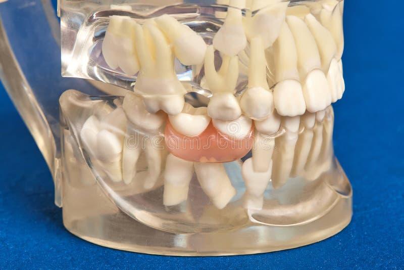 Human teeth orthodontic dental model with implants, dental braces. Human jaw or teeth orthodontic dental model with implants, dental braces royalty free stock photo