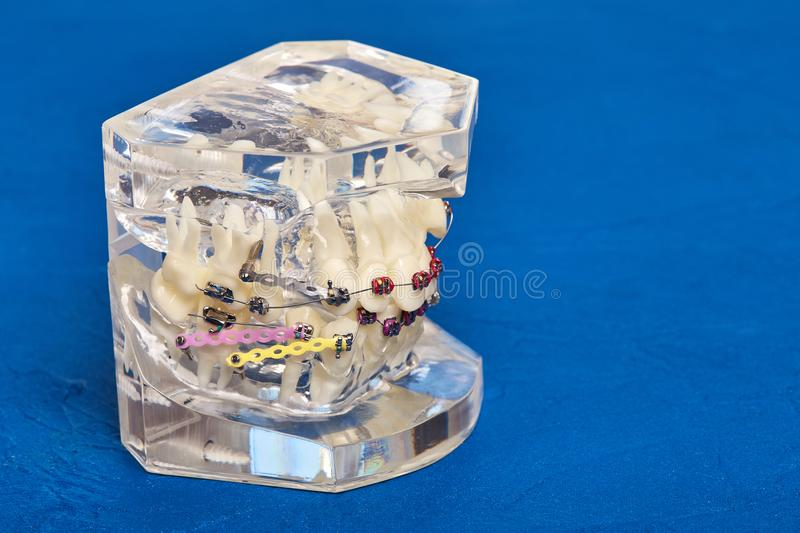 Human teeth orthodontic dental model with implants, dental braces. Human jaw or teeth orthodontic dental model with implants, dental braces royalty free stock photography