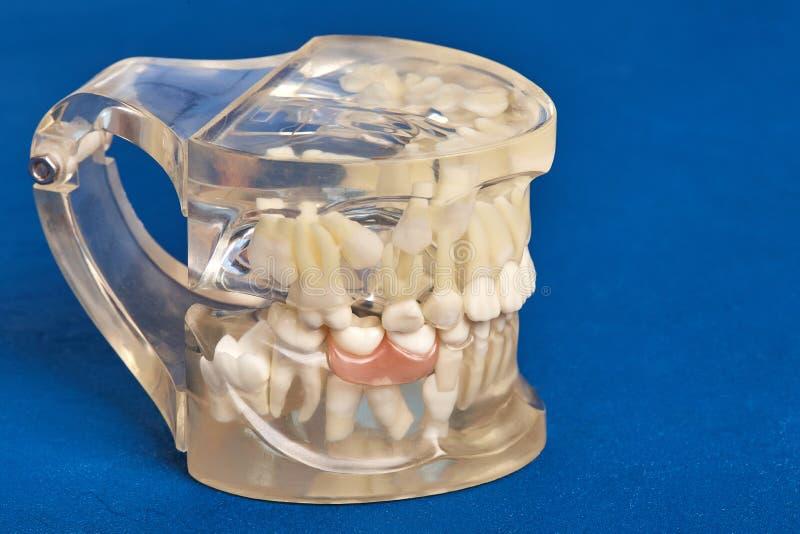Human teeth orthodontic dental model with implants, dental braces. Human jaw or teeth orthodontic dental model with implants, dental braces stock images
