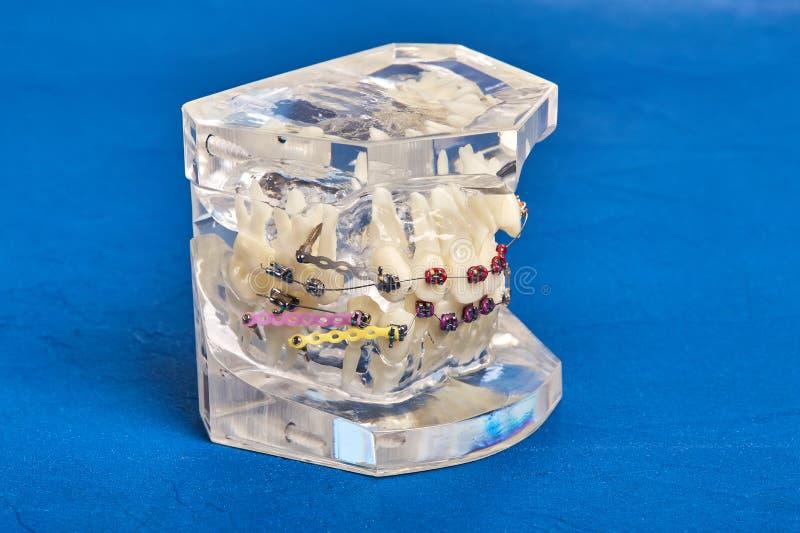 Human teeth orthodontic dental model with implants, dental braces. Human jaw or teeth orthodontic dental model with implants, dental braces stock image