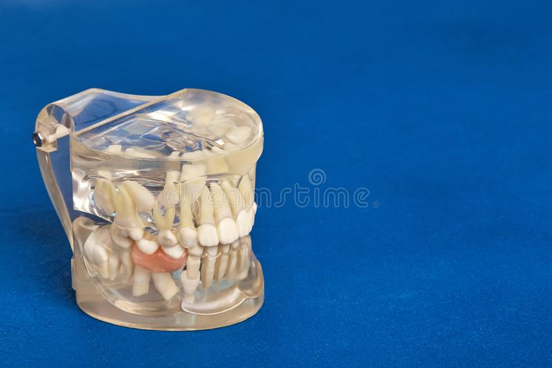 Human teeth orthodontic dental model with implants, dental braces. Human jaw or teeth orthodontic dental model with implants, dental braces stock photography