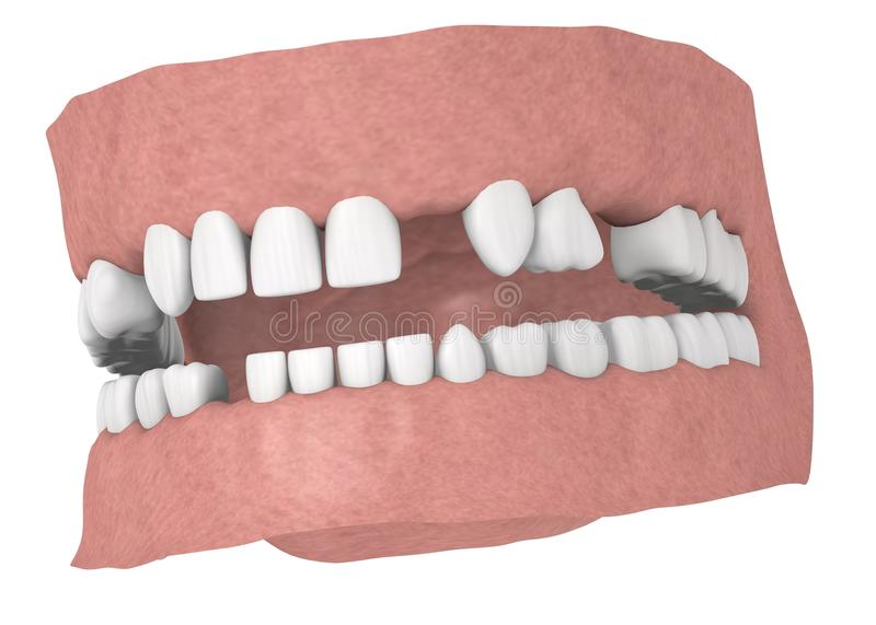 Human teeth without some teeths royalty free illustration