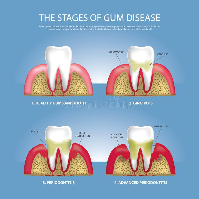 Human teeth Stages of Gum Disease. Vector Illustration stock illustration