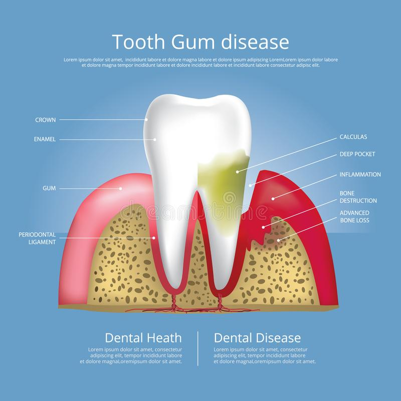Human teeth Stages of Gum Disease stock illustration