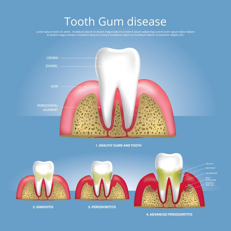 Human teeth Stages of Gum Disease royalty free illustration
