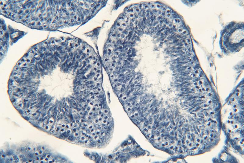 Human testis under microscope view. royalty free stock photos