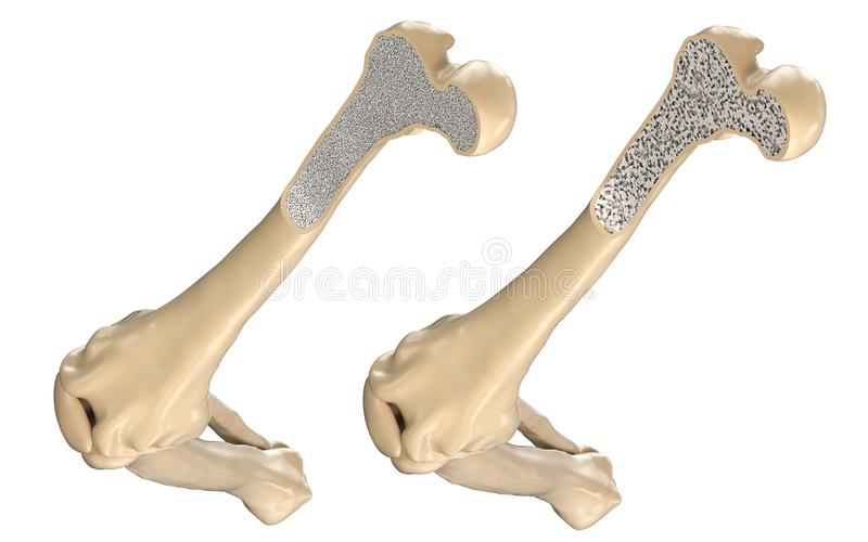 Human Thigh Bone - Normal and with Osteoporosis. 3D illustration stock illustration