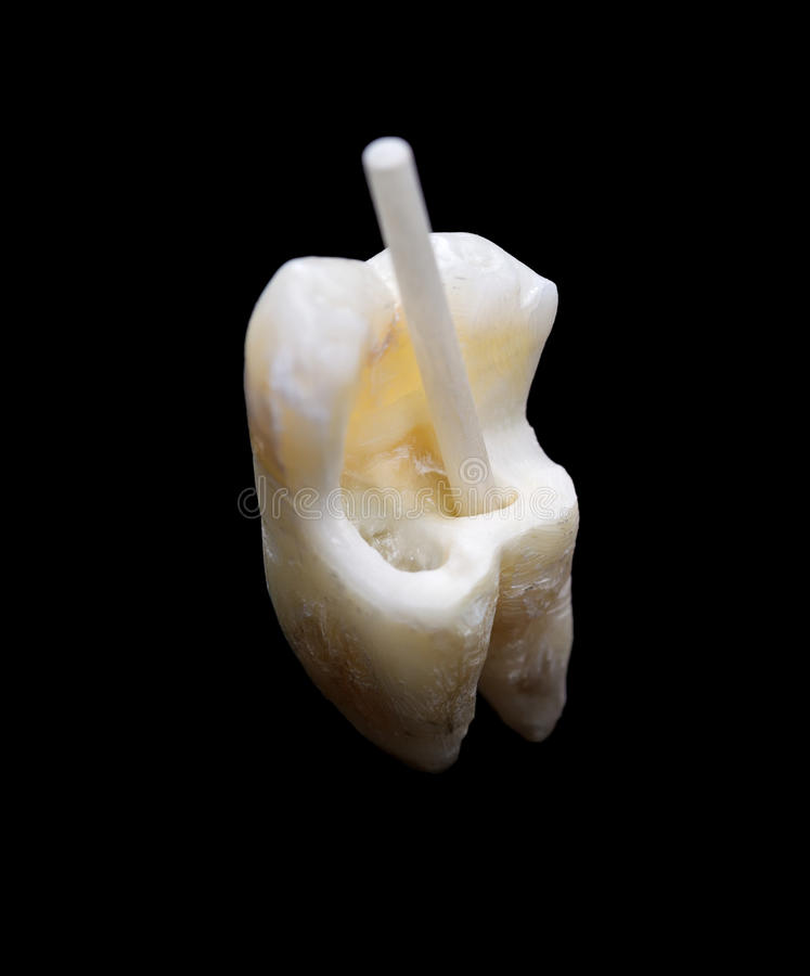 Human tooth with fiber resin post royalty free stock image