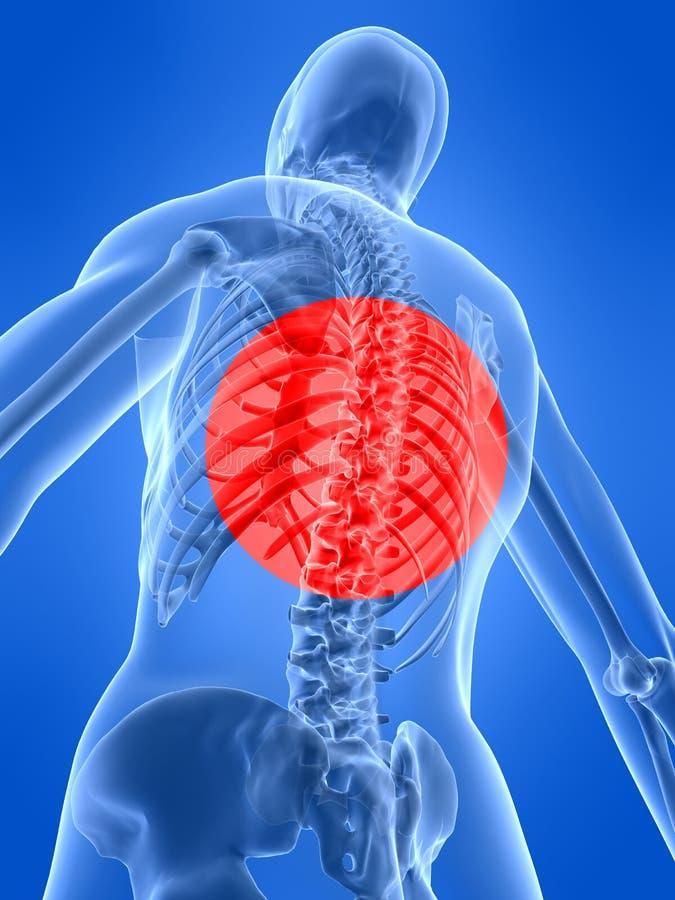 humanen smärtar ryggen vektor illustrationer