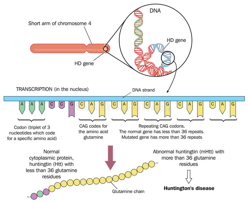 Huntington's disease vector illustration