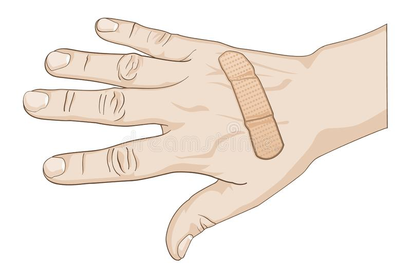 Hurt Hand with Adhesive Bandage Color Vector Graphic Illustration royalty free illustration