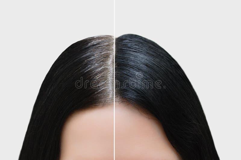 Huvud av en flicka med svart grått hår Isolerat över vit För och after royaltyfri fotografi