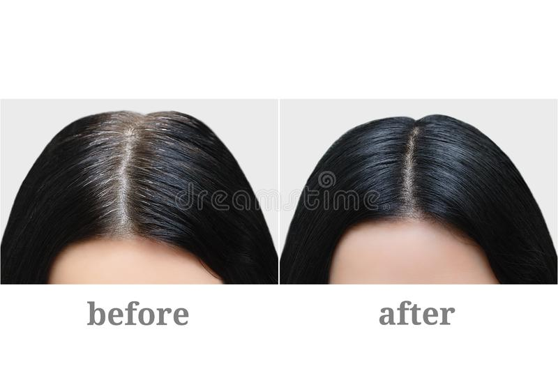 Huvud av flickan med svart grått hår Isolerat över vit För och after arkivfoton
