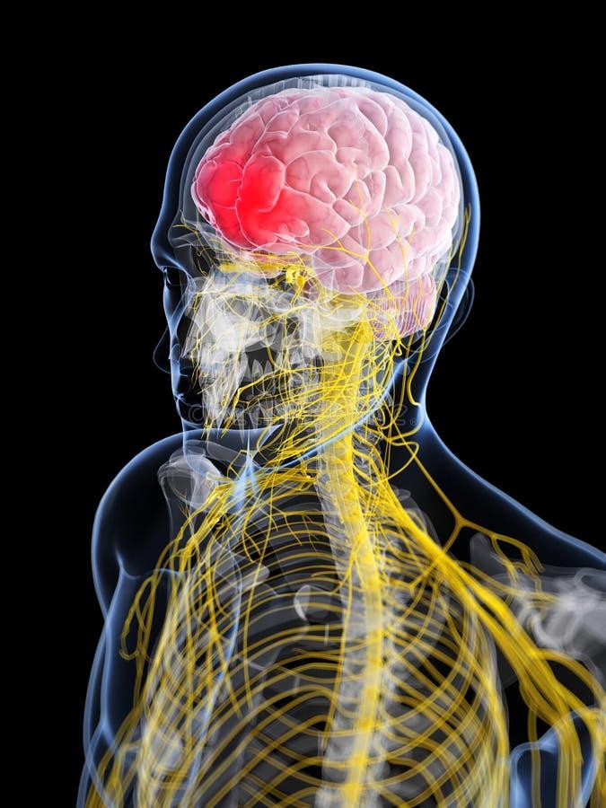 Huvud - huvudvärk stock illustrationer