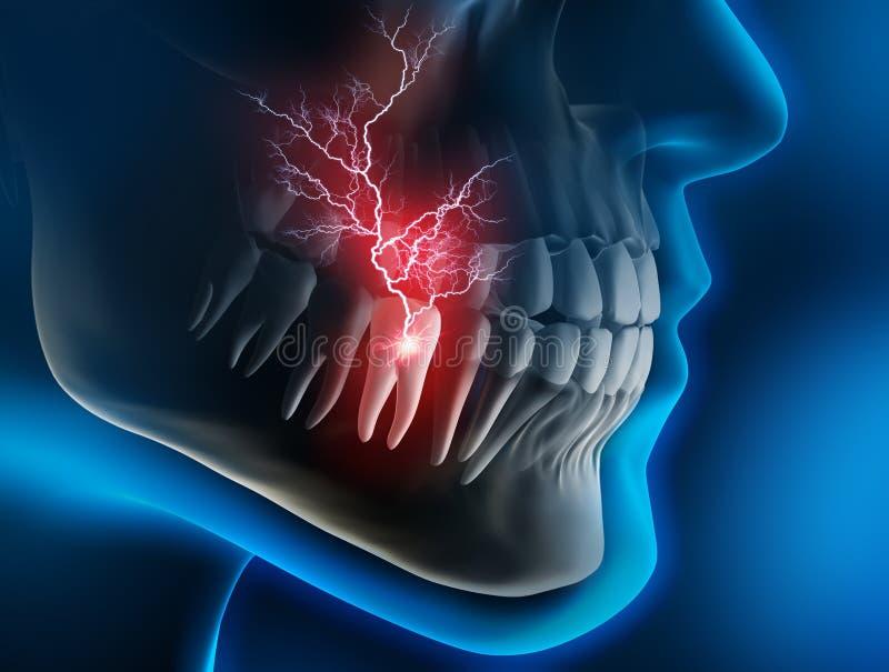 Huvudet och käken med smärtar i en tand mot en blå bakgrund stock illustrationer