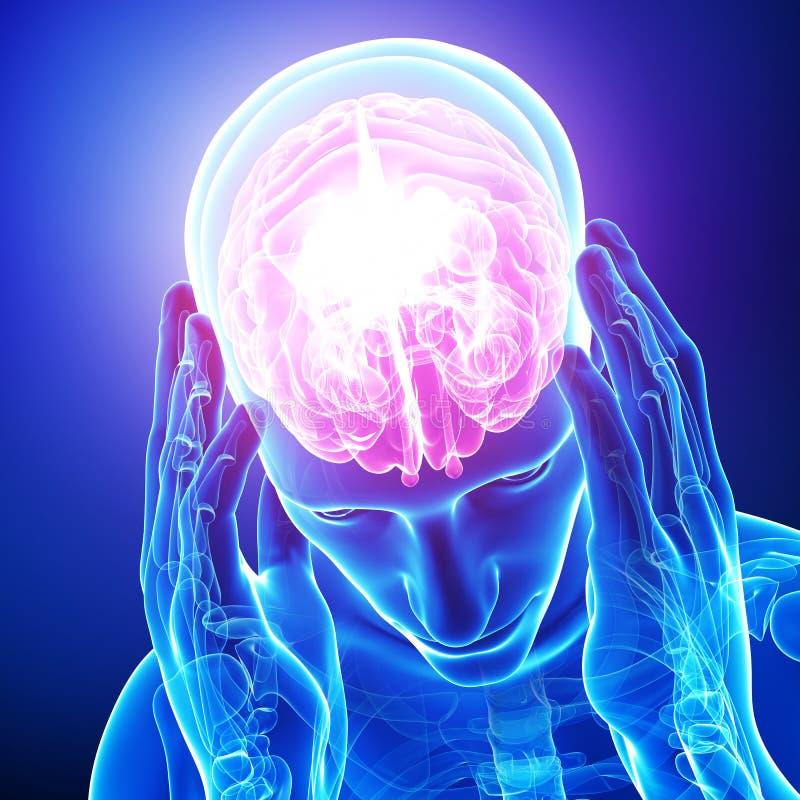 Huvudvärk/migrän av manlign vektor illustrationer