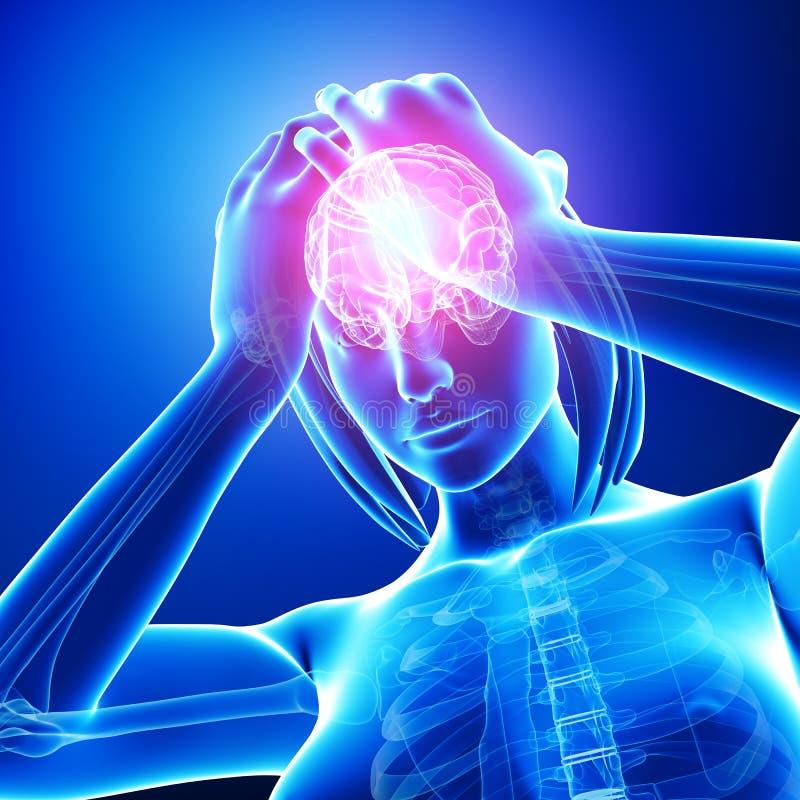 Huvudvärk/migrän i den kvinnliga huvuddelen vektor illustrationer