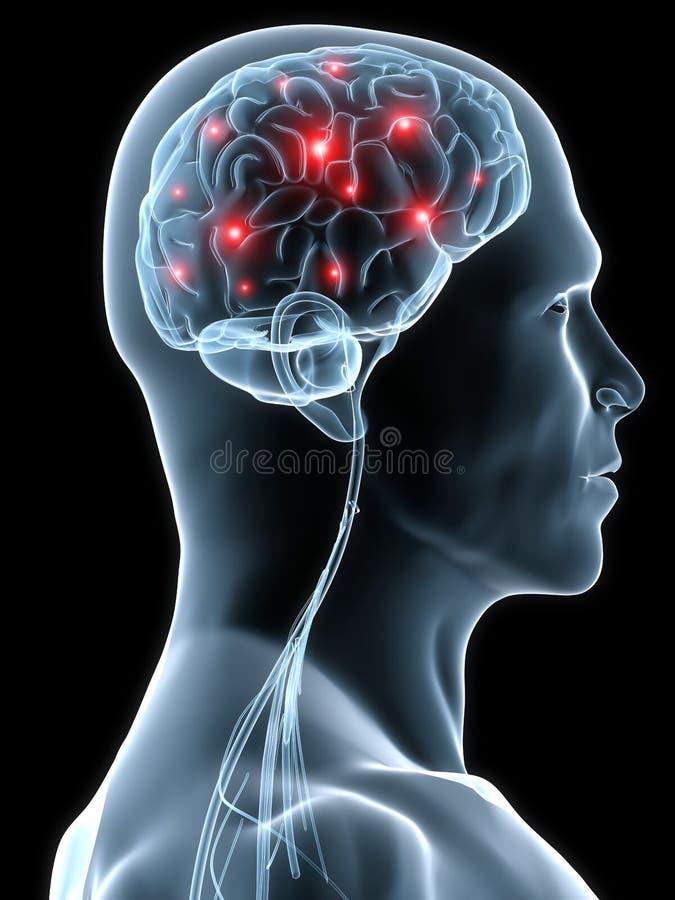 huvudvärkmigrän vektor illustrationer