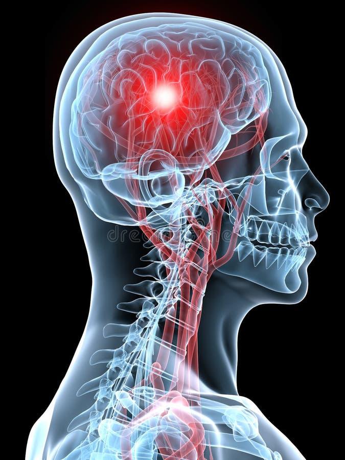 huvudvärkmigrän stock illustrationer