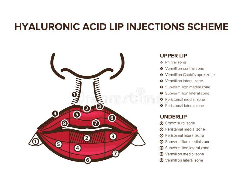 Hyaluronic кисловочный заполнитель Впрыски губы Анатомия губы иллюстрация вектора