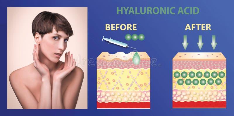 Hyaluronic кислота продукты кож-заботы подмолаживание кожи стоковые фотографии rf